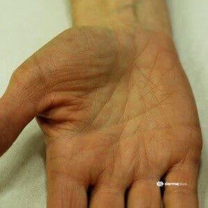 ichthyosis fischschuppenkrankheit Hyperlinearität