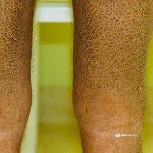 ichthyosis vulgaris fischschuppenkrankheit