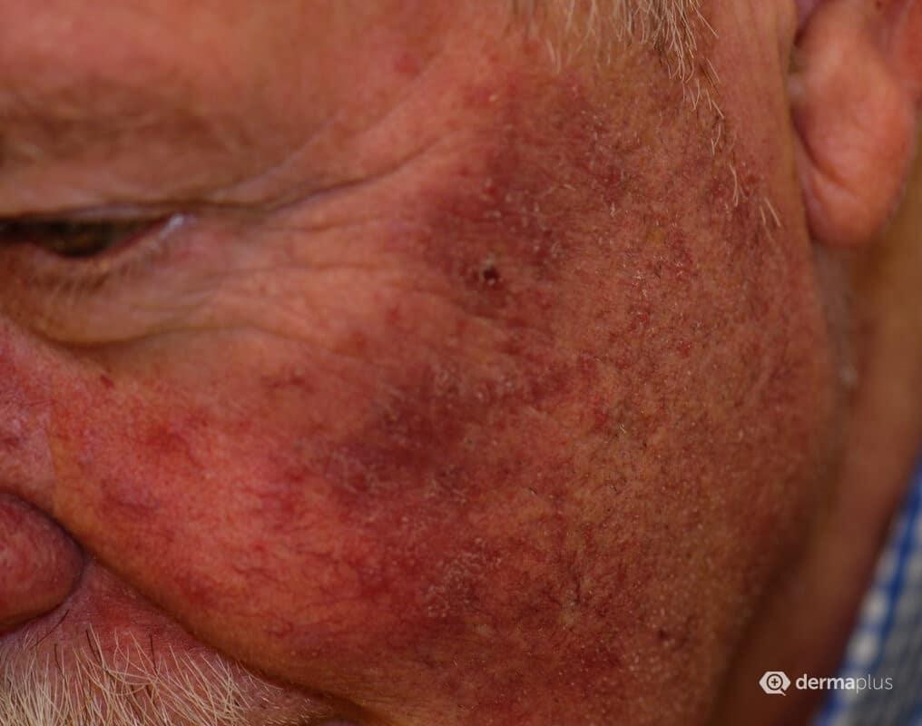 rosazea und migraene kopfschmerzen
