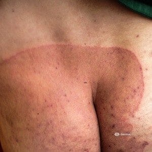 Körperpilz Dermatophytose Tinea corporis Tinea inguinalis mit großflächigem Befall des Gesäßes