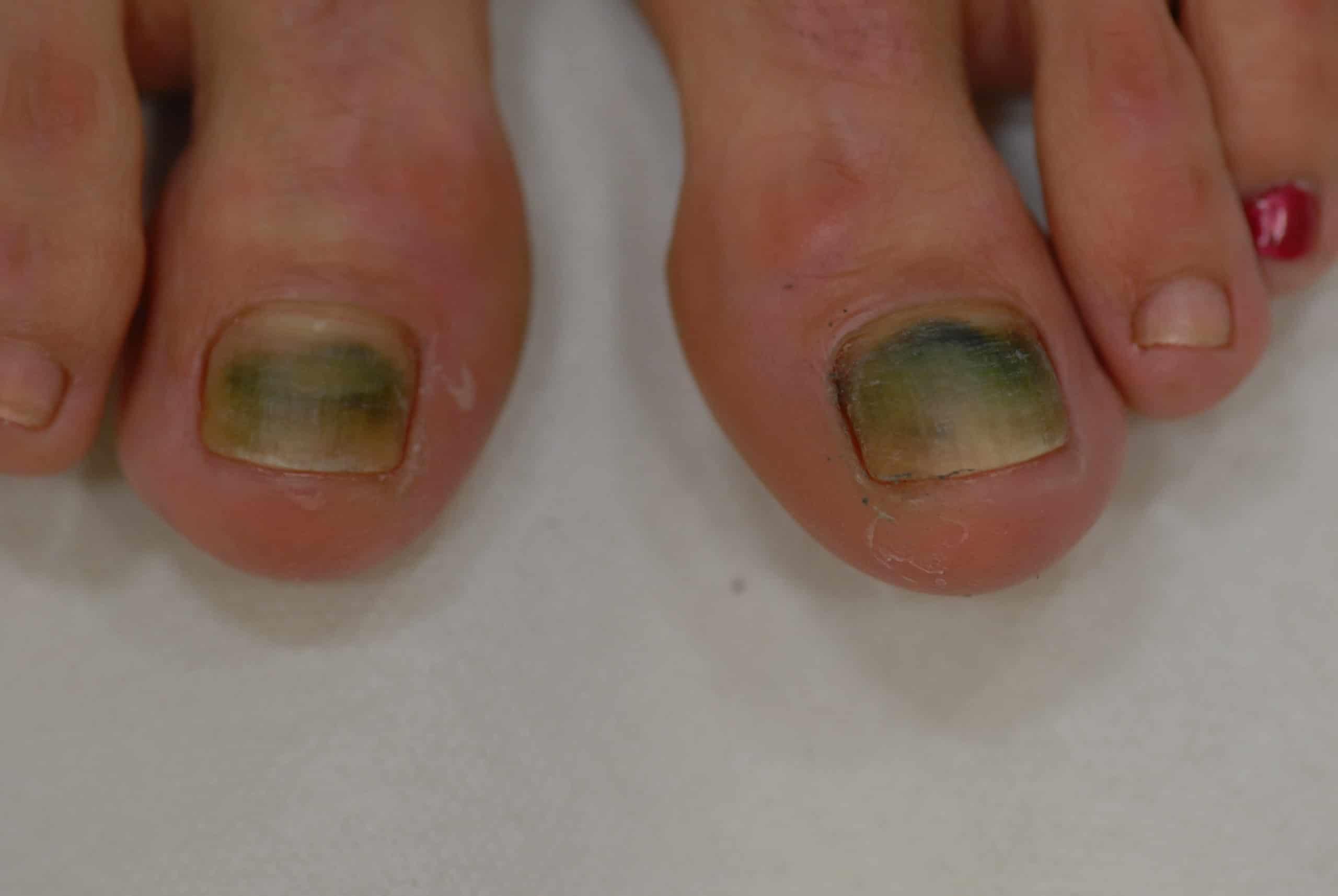 Grüne Nägel (Chloronychie) - Ursachen und Therapie | derma.plus