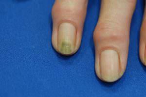gruene naegel nägel nagelpflege
