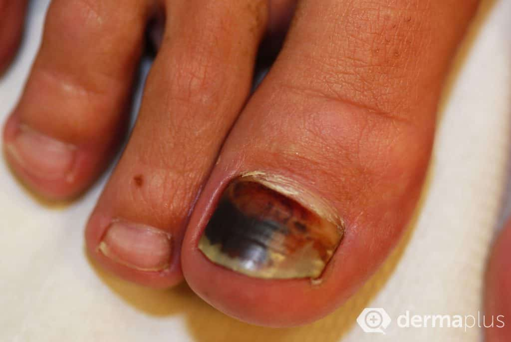 nagelmykose onychomykose nagelpilz