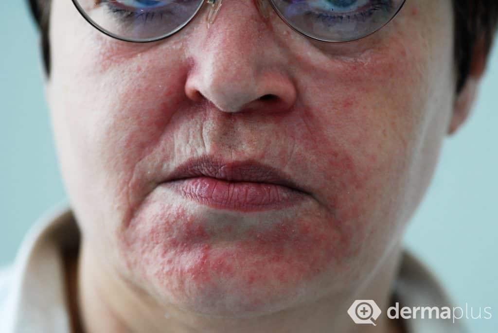 periorale dermatitis roetung Mundrose periorale dermatitis