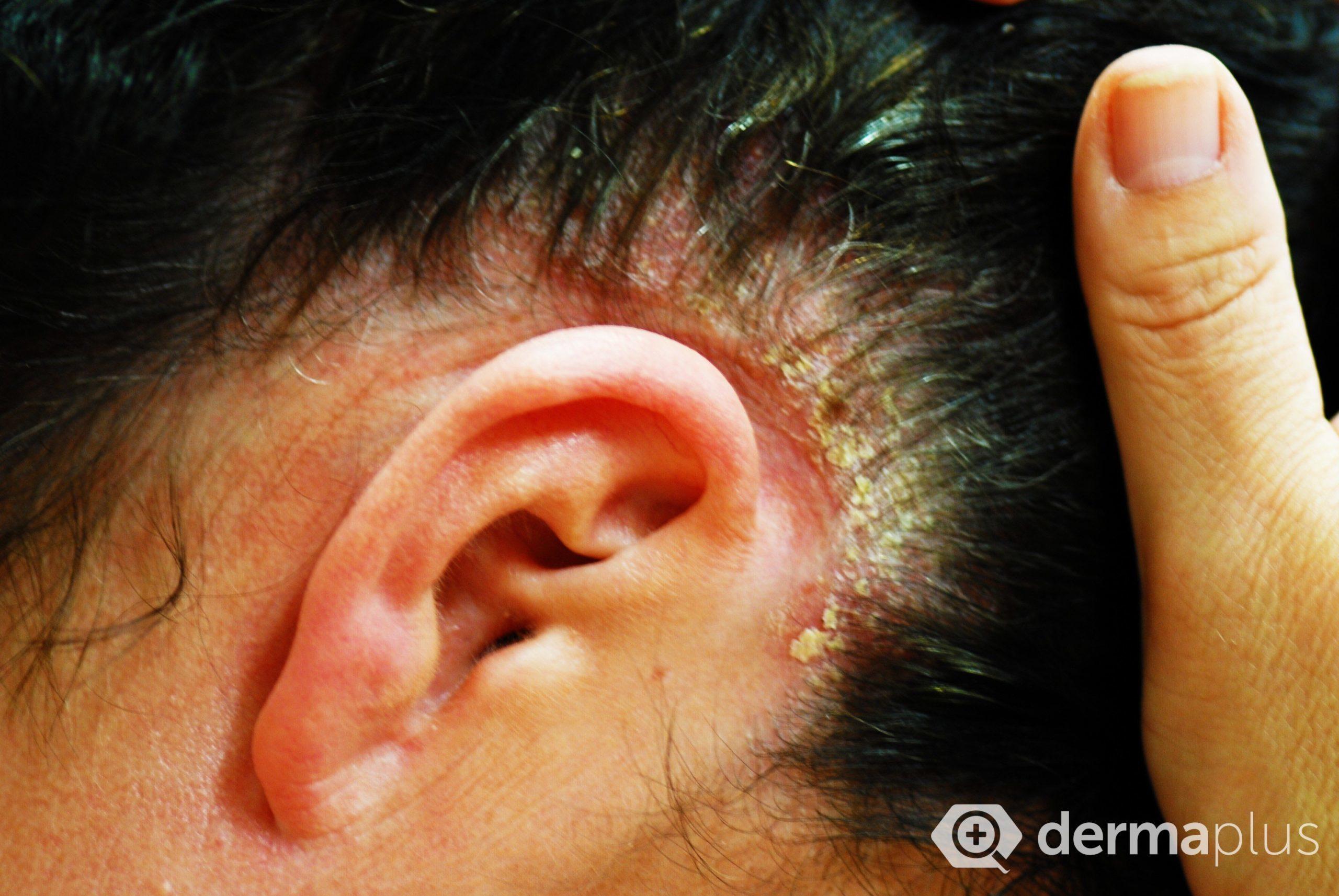Etwas Neues genug Kopfhaut-Schuppenflechte Ursachen @ZZ_26