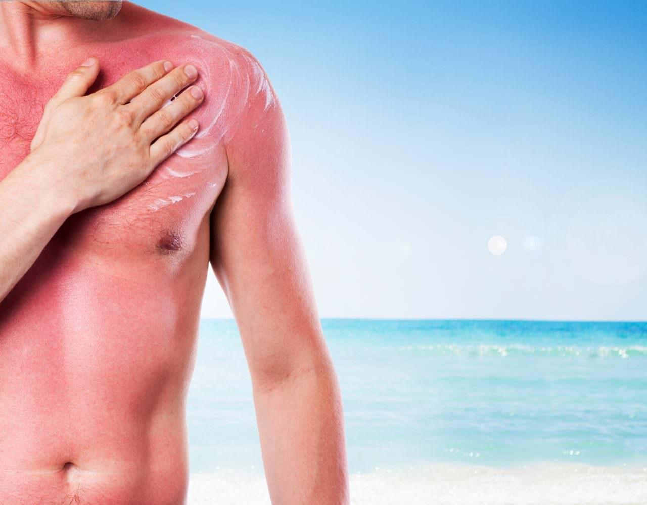 Sonnenbrand Hautkrebs